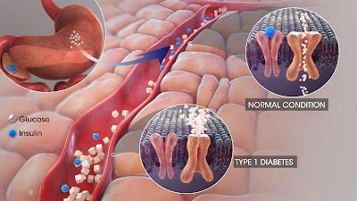 डाईबेटिस क्या है ? इसके मुख्य प्रकार और सावधानिया