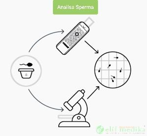 Proses Pemeriksaan Sperma