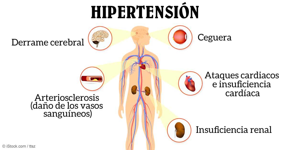 Hipertensión cardíaca pdf