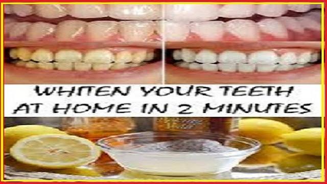 diy-white-teeth-at-home