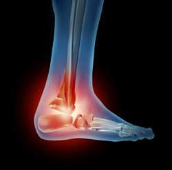 http://drsantpure.com/total-ankle-replacement.html