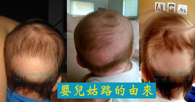 出生後休止期落髮 (Postnatal telogen effluvium)