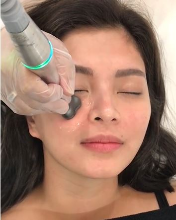Angel Locsin's No Make Up Look While Undergoing A Skin Tightening Treatment