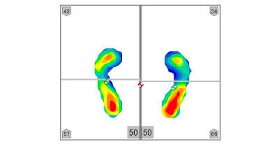 浮き指の人の足圧バランスデータ画像