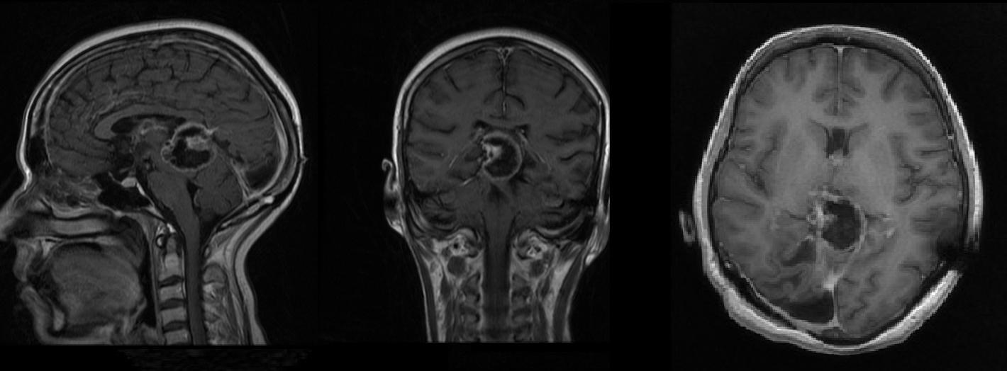 Dr Balaji Anvekar S Neuroradiology Cases Psammomatous