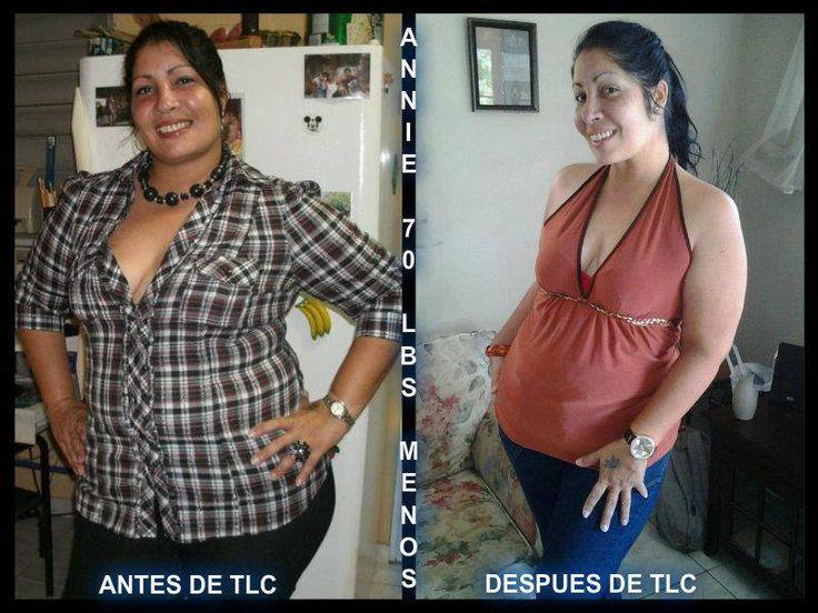 How to lose fat around your abdomen image 4