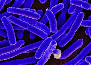 Mengenal Penyakit Meningitis bakterialis
