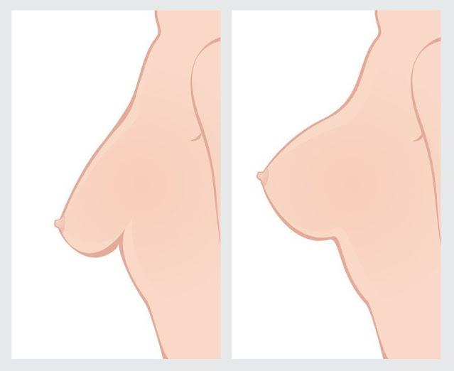 4 clés pour rendre les seins fermes quelle que soit leur taille