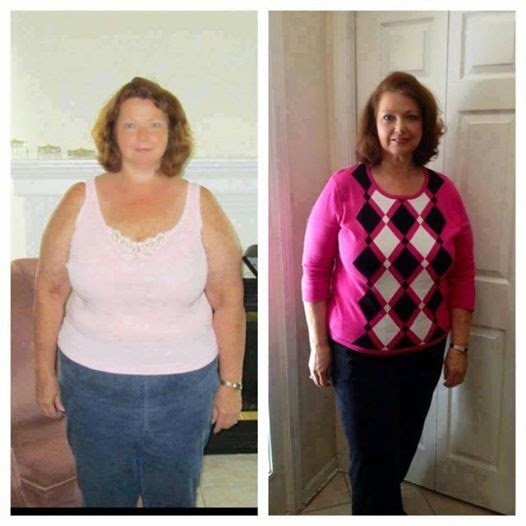 Jackie lost 56 pounds with Skinny Fiber.