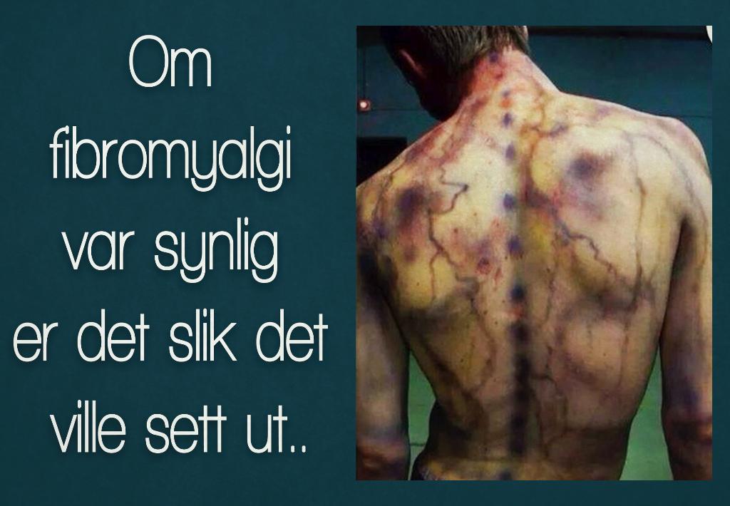 vandrende smerter i kroppen
