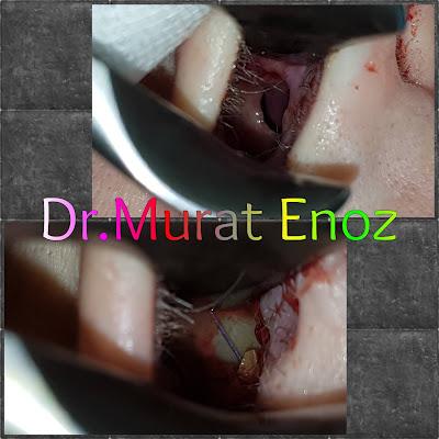 Cost of Nasal Septum Perforation Repair in İstanbul