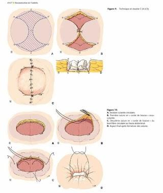 Reconstruction de l'ombilic.pdf