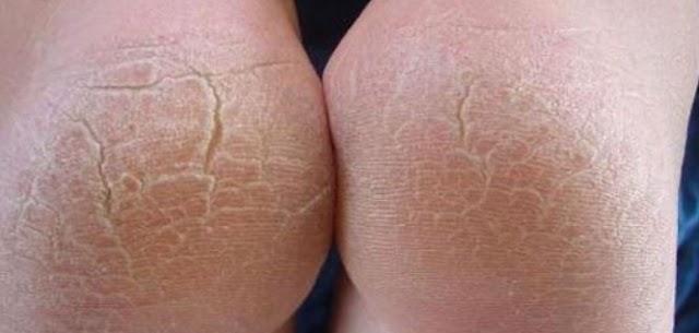 علاج تشقق القدمين بالخل والفازلين والشحم