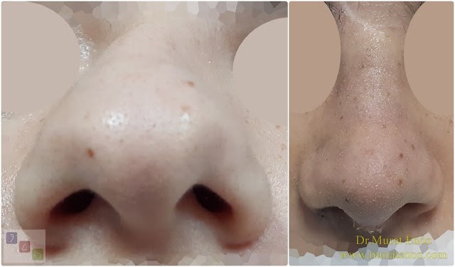 Treatment of Twisted Nose  - Treatment of Crooked Nose - Crooked Nose Aesthetic Surgery in Istanbul - Twisted Nose Treatment in Istanbul - Female Nose Aesthetic Surgery - Nose Jobs For Women - Nose Reshaping for Women - Female Rhinoplasty Istanbul - Nose Job Surgery for Women - Women's Rhinoplasty - Nose Aesthetic Surgery For Women - Female Rhinoplasty Surgery in Istanbul - Female Rhinoplasty Surgery in Turkey - C Burun - Crooked Nose - Deviated Nose - Twisted Nose - Deflected Nose - Asymmetric Nose - Scoliotic Nose - Rhinoplasty in Istanbul - Rhinoplasty Istanbul - Rhinoplasty in Turkey - Rhinoplasty Turkey - Nose Job Istanbul - Nose Job Turkey - Challenges in Treatment of Deviated Nose