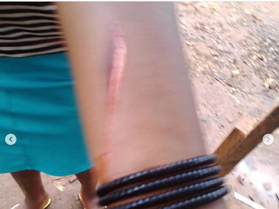 Uncle Flog His Niece, Blessing With a Knife at Ikom, Cross River State. PHOTOS