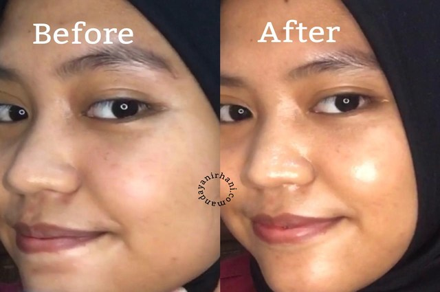 foto before after