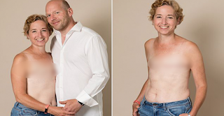 This Mom Has Conquered Cancer And Proudly Poses To Show The Scars Of Her Mastectomy