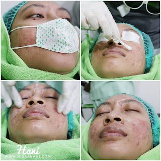 Chemical-peeling-acne