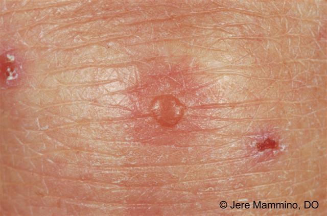 Allergy Symptoms Explained