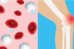 The Link Between Rheumatoid Arthritis and Anemia