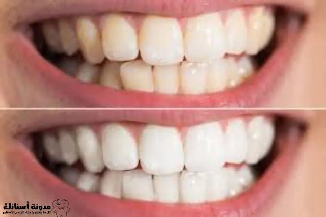 أسنان أكثر بياضا ولمعانا؟ يمكنك الحصول عليها من خلال هذه النصائح الـ 15.