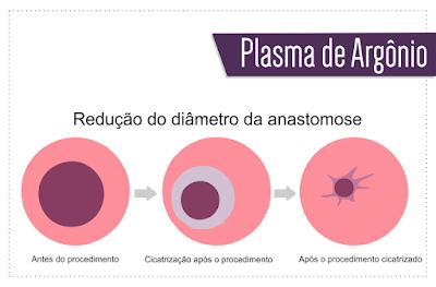 ilustração que representa a cirurgia de plasma de argônio, com a redução da anastomose do novo estômago