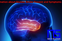 Information about Disease Stroke Prevent and Symptoms