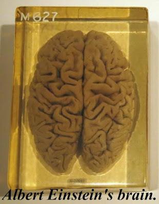 albert einstein's brain