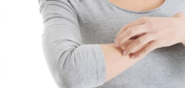 علاج حساسية الجلد والهرش وأسبابها ووصفات طبيعية للعلاج .