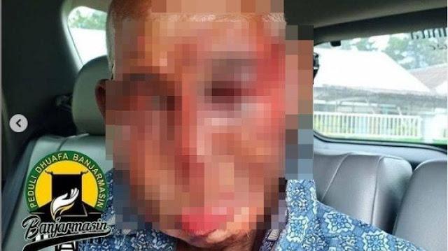 VIRAL Kakek Basri Disiksa 3 Pria Gara-gara Minta Rokok 2 Batang, Wajah Dihajar, Digesekan ke Aspal