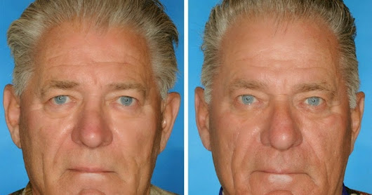 This Is What 7 Smoker vs. Non-Smoker Identical Twins Look Like After Years Of Lighting Up