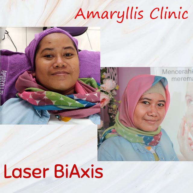 Laser Biaxis di Amaryllis Clinic Bekasi