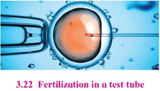 IVF technique