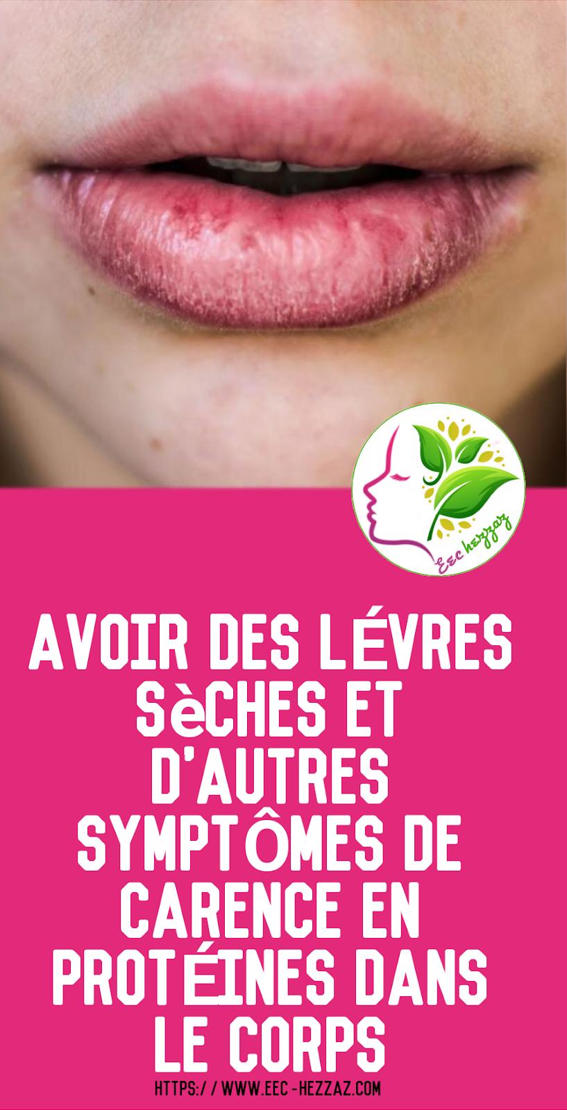 Avoir des lèvres sèches et d'autres symptômes de carence en protéines dans le corps