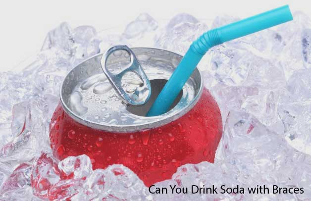 Can You Drink Soda with Braces?