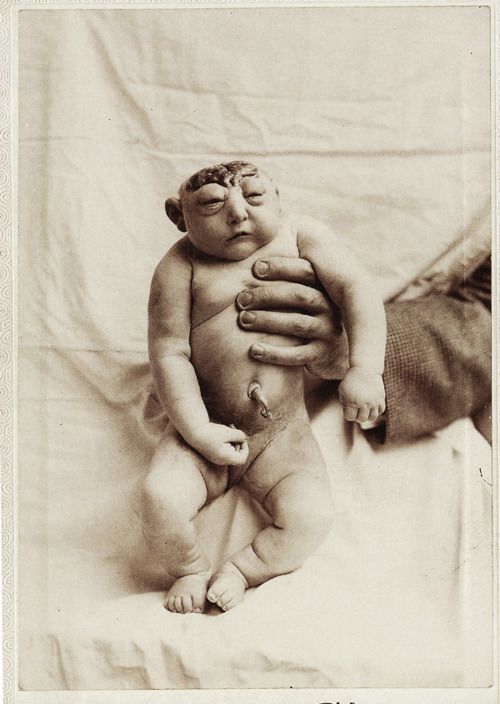 Anencephalic baby birth defects