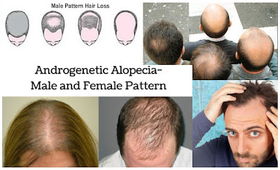 Androgenetic Alopecia Patterns