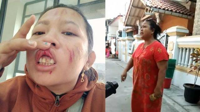 Viral! Tanya Soal Sembako Dari Pemerintah, Ibu di Jakarta Dihajar Istri RT Hingga Babak Belur