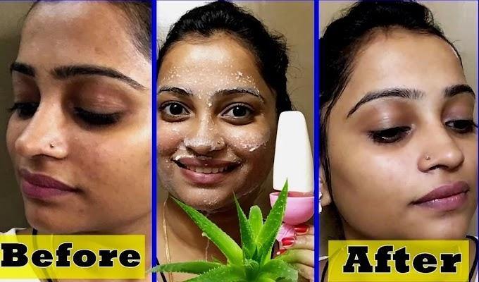 Applying aloe vera on face daily benefits