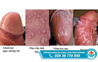 Điều trị viêm bao quy đầu ở đâu hiệu quả, giá rẻ ở Quận Tân Phú