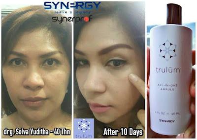 Jual Obat Penghilang Flek Hitam Trulum Skincare Cimincrang