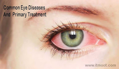 Common Eye Diseases And Treatment Of Eye Problem