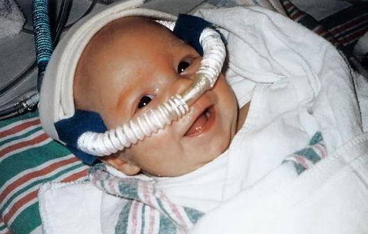 CPAP w leczeniu noworodków