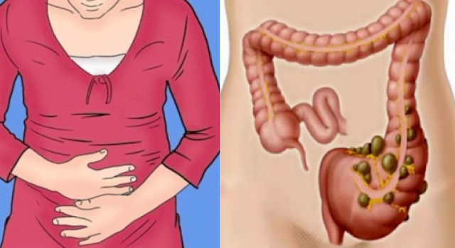 "You Are Not Fat: You Have ""POO"" Trapped In Your Colon And Find Out How To Get Rid Of It Instantly"