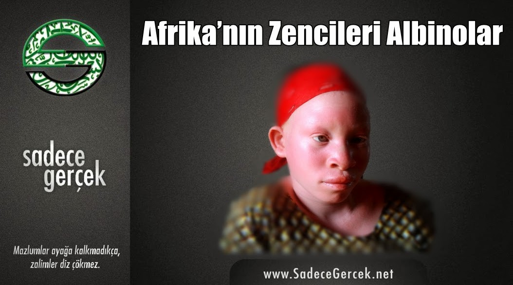 Afrika'nın zencileri Albinolar