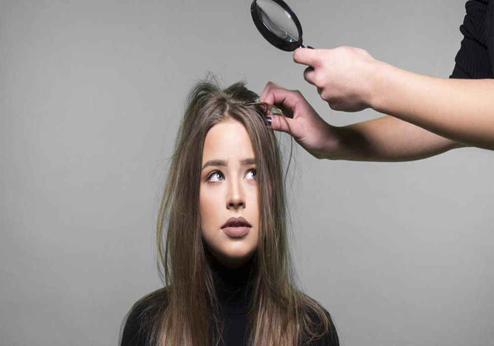 2 Simple tips for How to get rid of dandruff