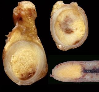 Tumor de la Apendice