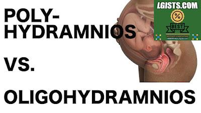 Polyhydramnios And Oligohydramnios
