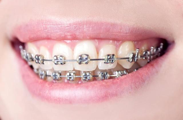 Resiko Penggunaan Behel Gigi