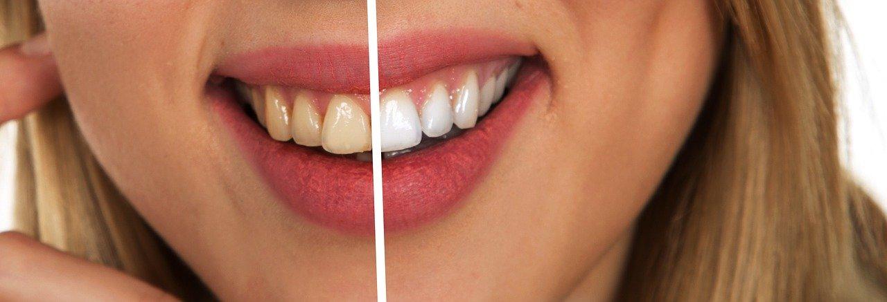 cara memutih gigi secara alami